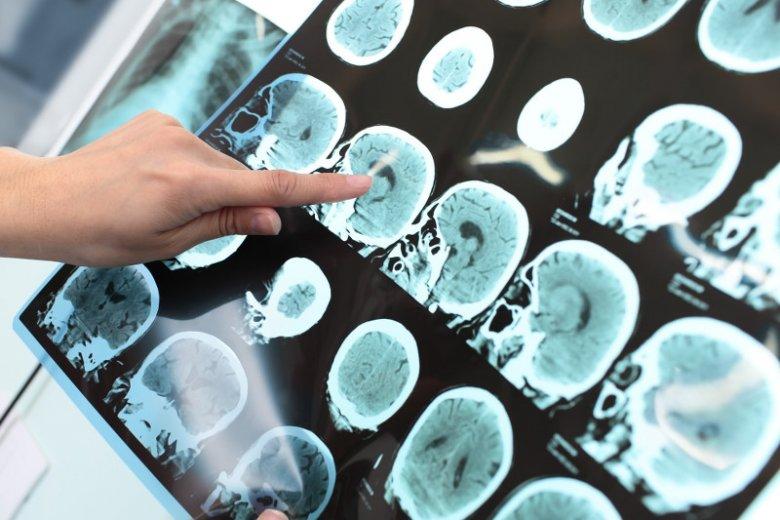 Choroby mózgu dotykają coraz częściej młodych osób.