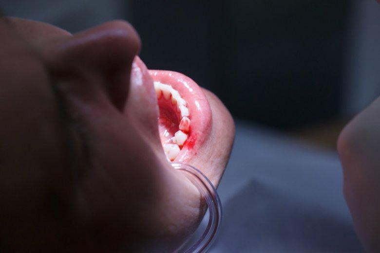 Paradontoza może powodować problemy z nieświeżym oddechem.