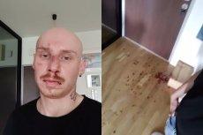 Jacek Szawioła został dotkliwie pobity przed własnym domem