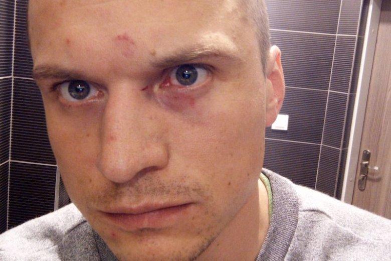 Fotoreporter Jakub Szafrański został zaatakowany podczas zgromadzenia społeczności LGBT w Warszawie.