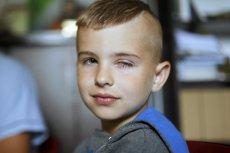 Jakub Baleński, któremu przeszczepiono komórki rąbka rogówki. Dzięki temu zabiegowi chłopiec odzyskał wzrok, który stracił po oparzeniu wapnem.