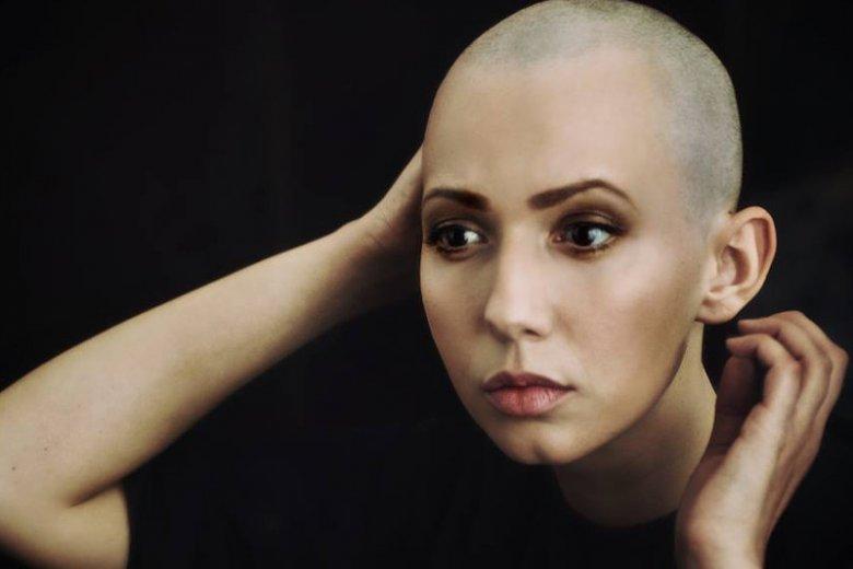 Marzena Erm na chłoniaka Hodkina choruje od 4 lat