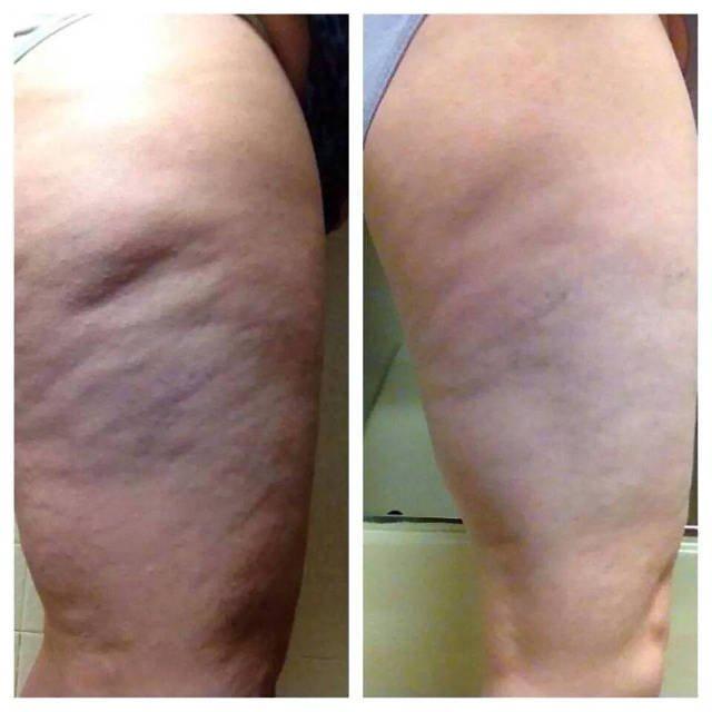 Cellulitis to choroba skóry, która wiąże się z bólem i dyskomfortem