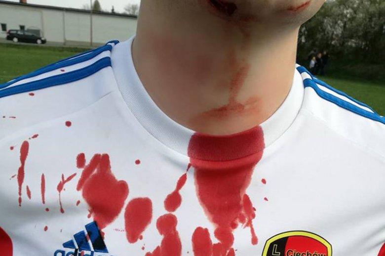 Jeden z kibiców próbował poderżnąć piłkarzowi gardło.