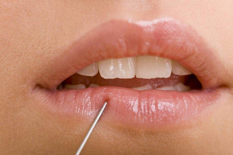 Wypełnianie ust kwasem hialuronowym jest dziś bardzo popularne