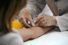Nowe leczenie, może zrewolucjonizować terapię chłoniaka.