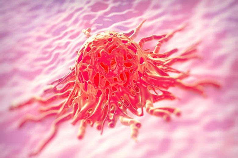 Grzeszna komórka raka szyjki macicy.