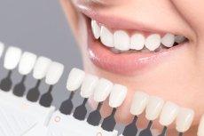 Lepiej nie eksperymentować i wybielanie zębów pozostawić dentyście lub higienistce stomatologicznej.