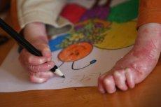 Dzieci chore na EB potrzebują ogromnej ilości specjalistycznych opatrunków.