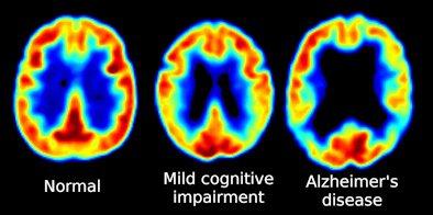 Porównanie mózgów pacjenta zdrowego (z lewej), z łagodnymi zaburzeniami poznawczymi (środek) oraz z chorobą Alzheimera (z prawej).