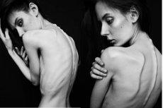Na anoreksję najczęściej chorują perfekcjonistki