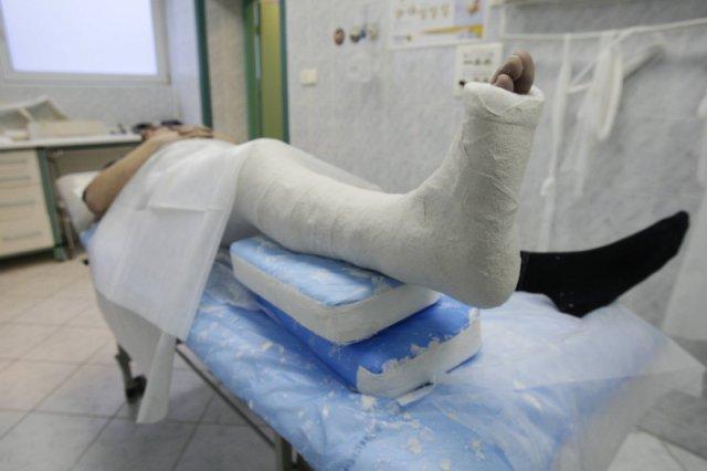 Jednym z objawów szpiczaka są złamania patologiczne.