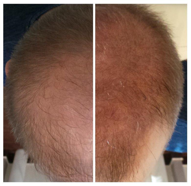 Zagęszczenie włosów dzięki jednoigłowej mikropigmentacji