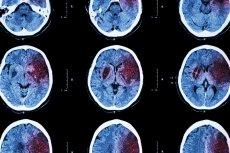 Udar mózgu może skończyć się w niektórych przypadkach śmiercią.