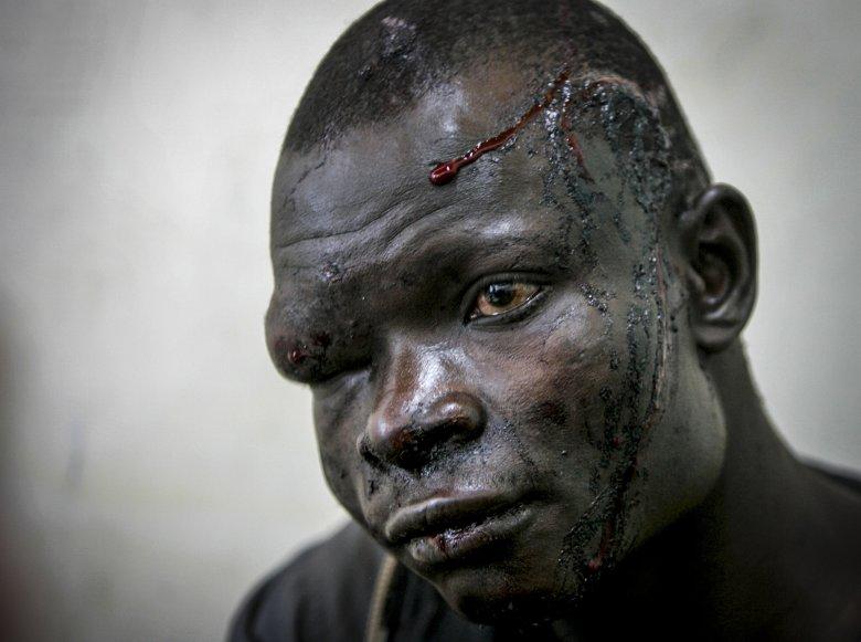 Ofiara starć międzyplemiennych w szpitalu w Nakuru.