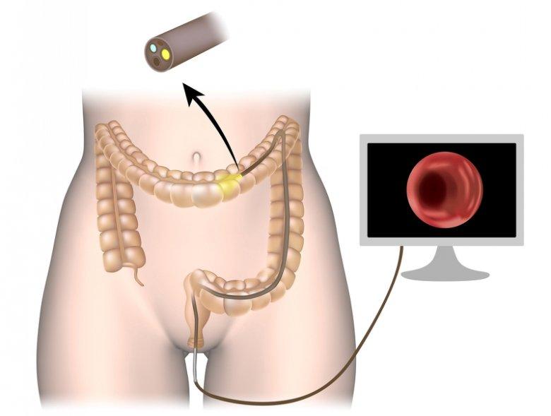 Kolonoskopia to badanie dolnego odcinka przewodu pokarmowego (jelita grubego) za pomocą kolonofiberoskopu.