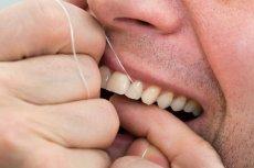 Nitkowanie zębów to niezbędna część higieny jamy ustnej.