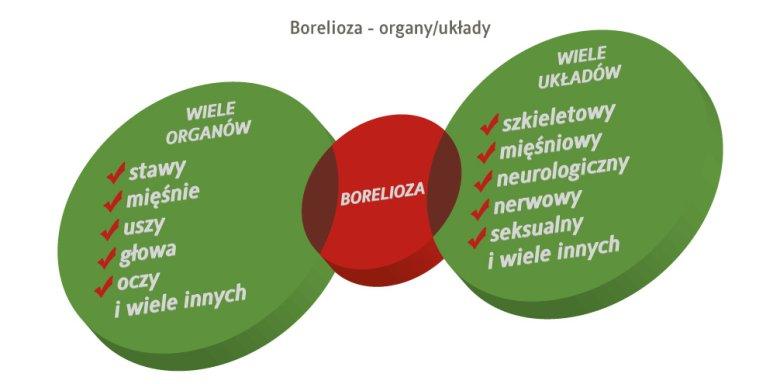 borelioza a organy i układy
