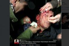 Ukraińska milicja pobiła Jurija Łucenko