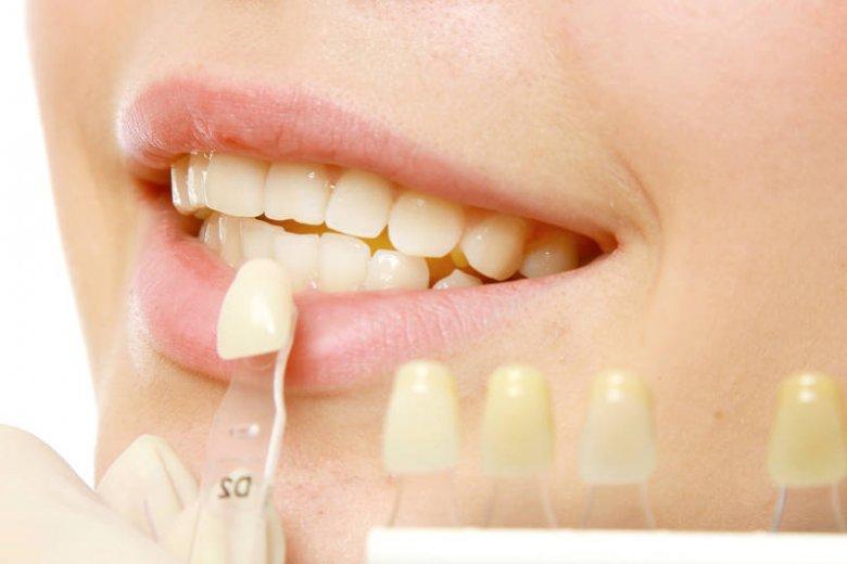Próbnik kolorów szkliwa potrafi nas zaskoczyć. Czasami jesteśmy nieświadomi, że nasz naturalny kolor zębów jest tak jasny