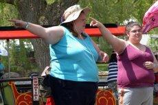 Obwisła skóra to problem, z którym często borykają się osoby, które schudły kilkadziesiąt kilogramów.