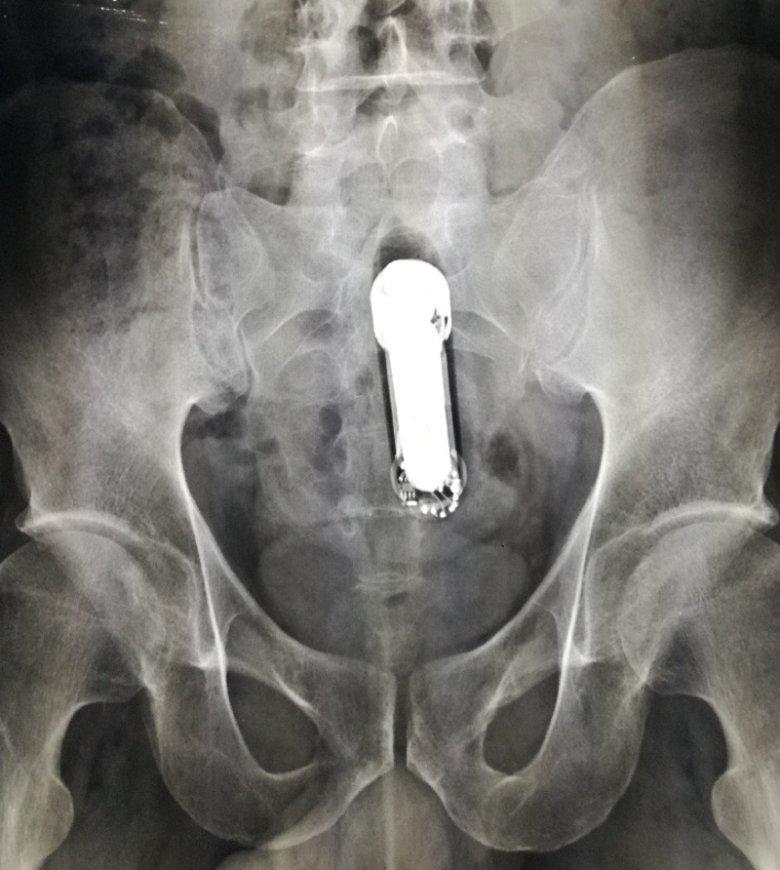 Zdjęcie rentgenowskie pacjenta, któremu utknął wibrator.
