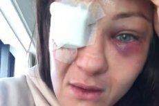 Karolina Kowalkiewicz doznała groźnej kontuzji oka podczas walki w Auckland.