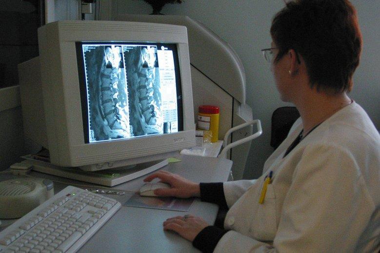 Choroby reumatyczne atakują często młodych ludzi.