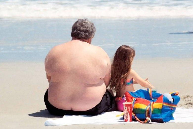Nie warto doprowadzić się do takiej otyłości...To utrudnia życie i skazuje człowieka na cierpienie