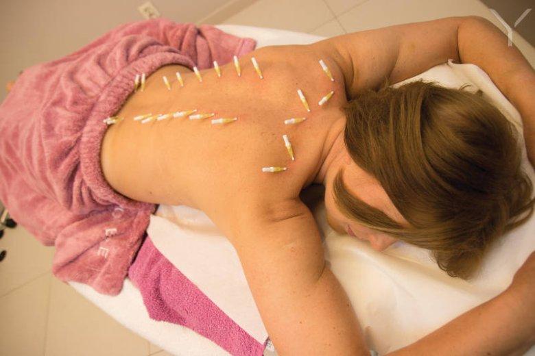 Punkt drugi HanBang: akupunktura z wykorzystaniem nici PDO