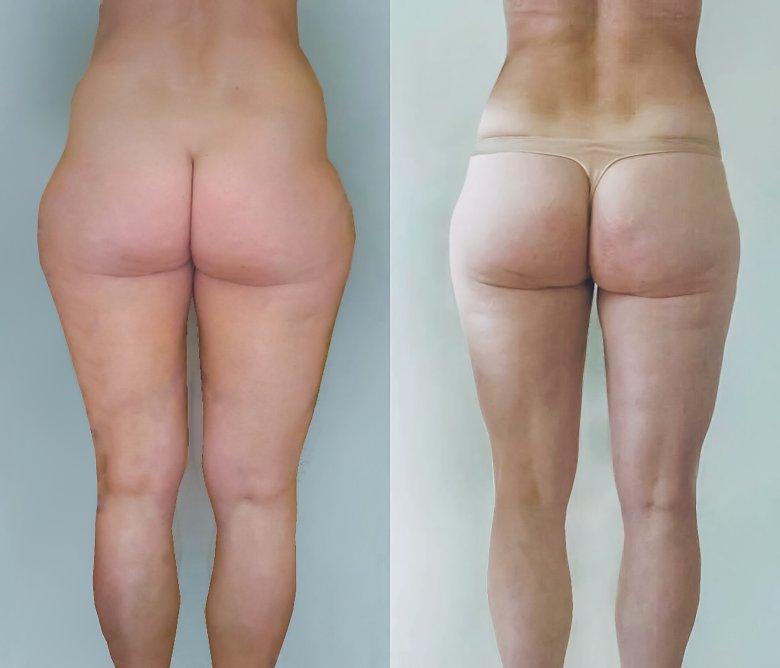 Liposukcja: zdjęcia przed i po zabiegu