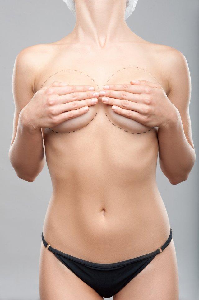 Medycyna estetyczna pozwala skorygować wiele mankamentów sylwetki poprzez zredukowanie tłuszczu, w tym cellulitu