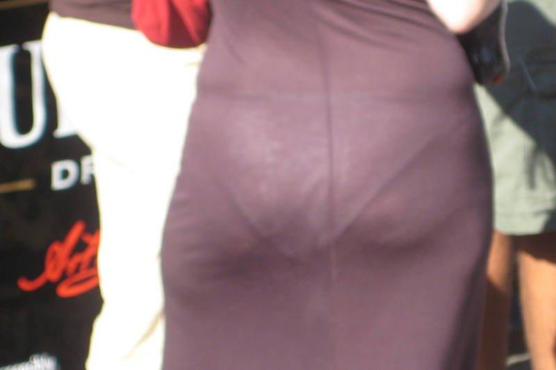 Cellulit dotyczy zarówno kobiet szczupłych jak i otyłych. Jest sprawiedliwy!
