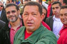 Prezydent Wenezueli Hugo Chavez po operacji usunięcia nowotworu czuje sięcoraz lepiej