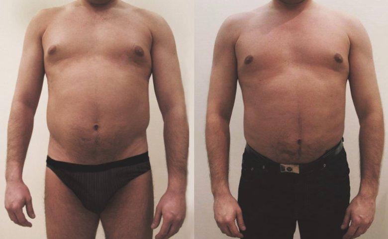 Liposukcja: zdjęcie przed i po zabiegu