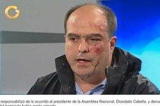 Julio Borges jeden z wenezuelskich polityków po bójce w parlamencie.