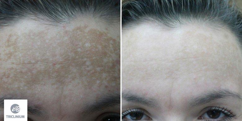 Przebarwienia typu melasma przed i w trakcie terapii - pacjentka po 10 zabiegach laserem bromkowo miedziowym i Q-switch fot. Triclinium
