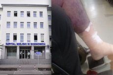 Z nogi mężczyzny na izbie przyjęć sączyły się płyny. Pacjent zmarł w szpitalu.