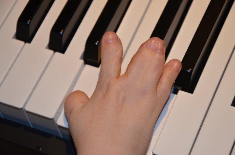Dłonie Marty mają zrośnięte cztery palce. Jest już po pierwszej operacji, ale potrzebna jest kolejna