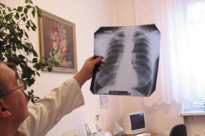 W Polsce problem gruźlicy nie jest tak poważny jak na Ukrainie
