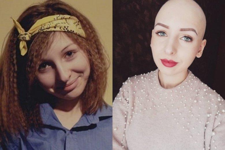 Zdjęcie po lewej przedstawia Olę przed tym, jak usłyszała diagnozę. Drugie zdjęcie jest aktualne