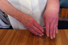 Dziedziczny obrzęk naczynioruchowy (hereditary angioedema, HAE) może prowadzić do śmierci np. przez uduszenie.