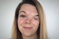 Anna Krawczunas-Kowalczyk potrzebuje operacji rekonstrukcji połowy twarzy.