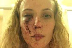 Rumunka brutalnie pobita w Doncaster. Napastnicy myśleli, że jest Polką.