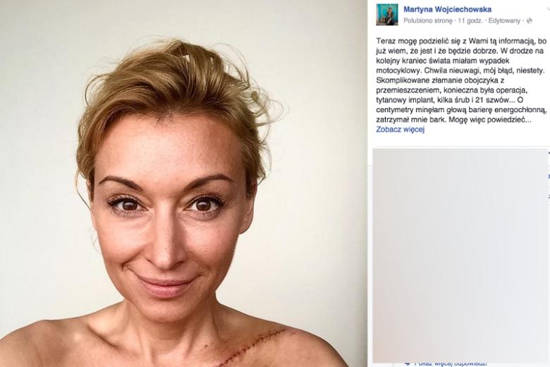Martyna Wojciechowska miała wypadek