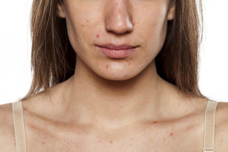 Problemy z trądzikiem nie dotyczą jedynie nastolatków.