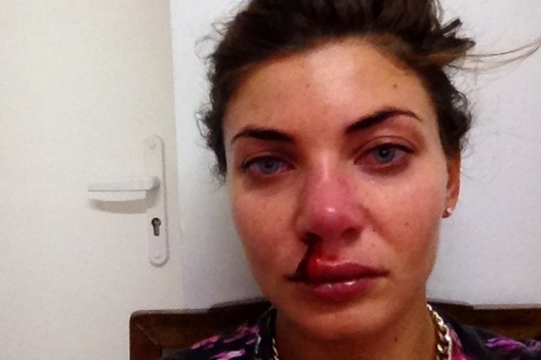 Zasiewska udostępniła na Instagramie zdjęcie z zakrwawionym nosem.