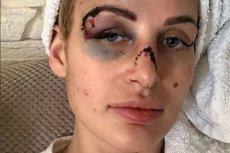 Kobieta została brutalnie pobita przez swojego partnera, który jest znanym trenerem personalnym w Trójmieście.