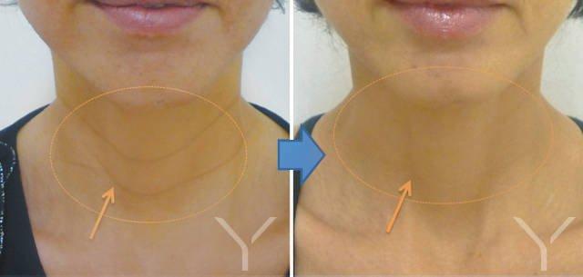 Efekty zabiegu na szyi