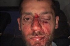 Zdjęcie jednego z poszkodowanych.